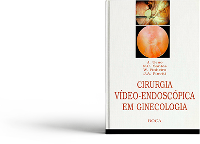 Ebook Cirurgia