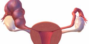 Hidrossalpinge: o que é? É grave? Qual o tratamento?