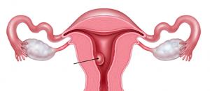 Pólipo uterino pode dificultar a gravidez. Conheça o problema