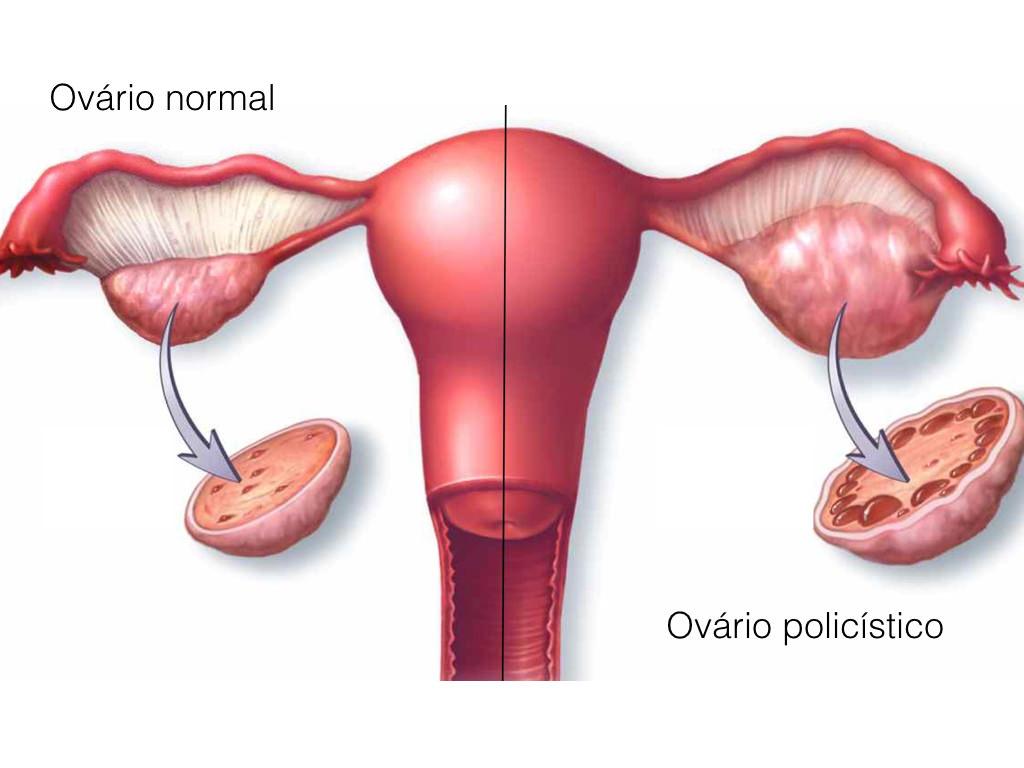 ovários policísticos diagrama dos ovários