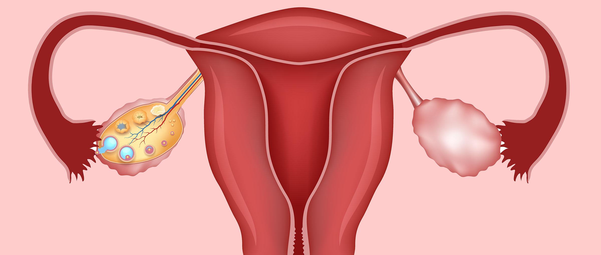 diagrama mostrando utero e ovários na anovulação