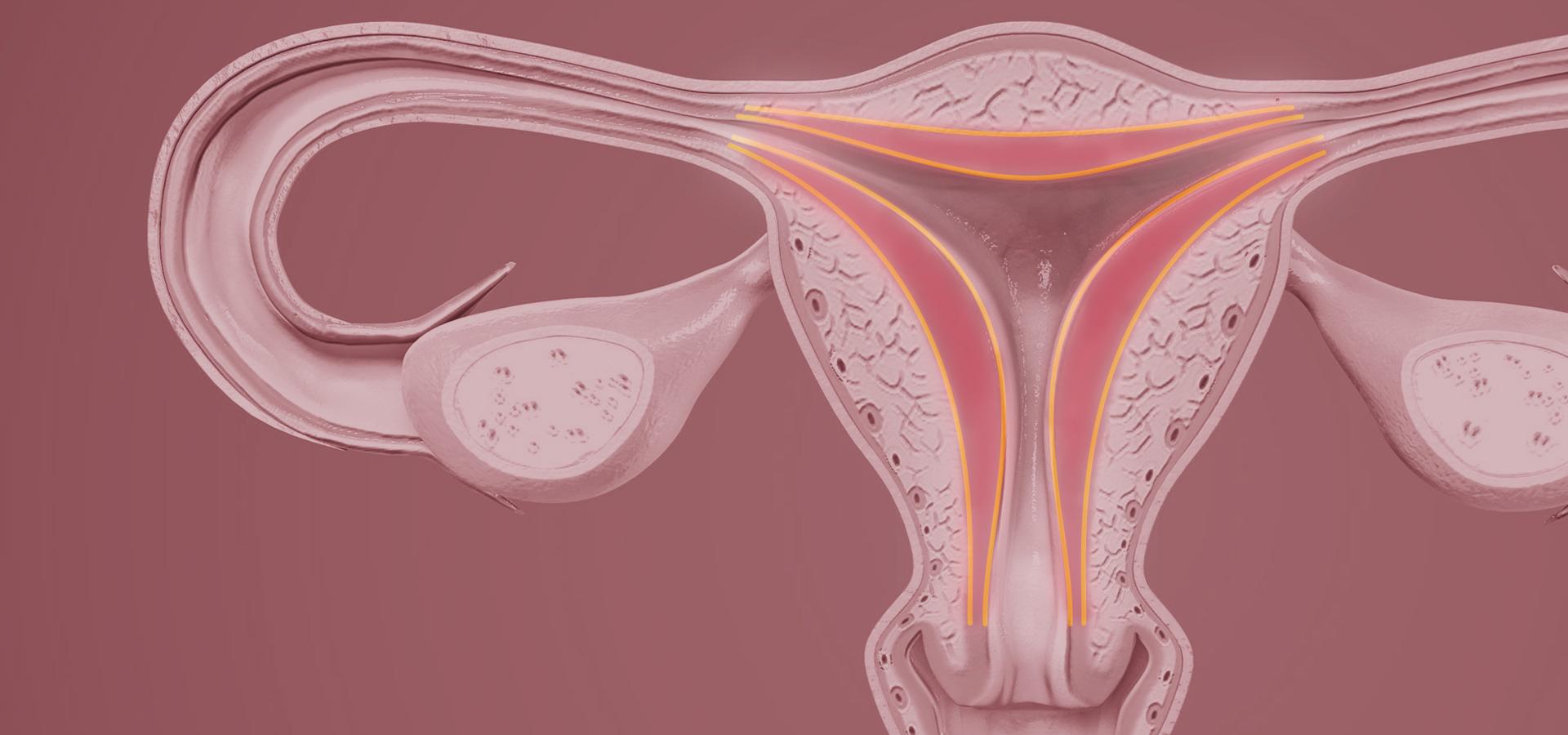 Ooforite causas: diagrama de útero