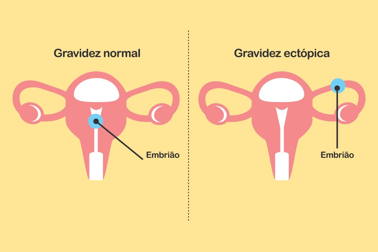 diagrama mostrando gravidez normal e gravidez nas trompas.