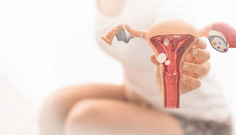 mulher sentada curvada de dor segurando um aparelho reprodutor feminino nas mãos