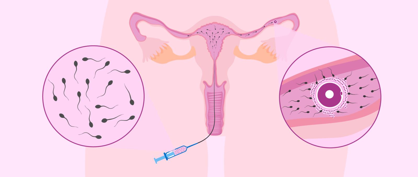 desenho mostrando esquema de inseminação intrauterina