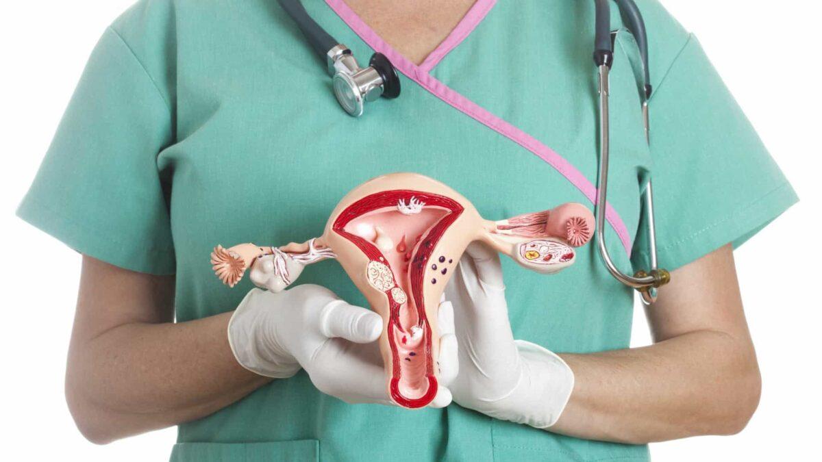 médico com útero na mão