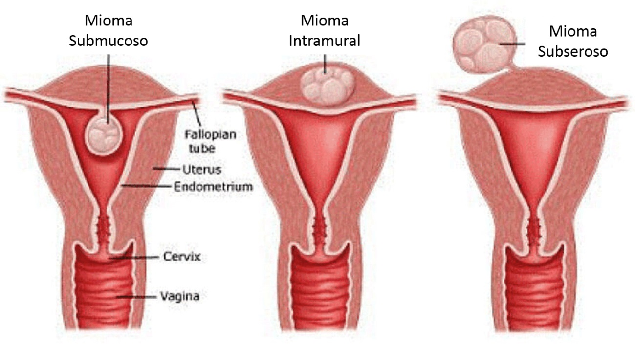esquemaliustrando diferentes tipos de miomas